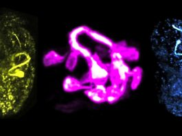Yale scientists have developed methods to visualize the development of the brain of a worm in all its rich complexity
