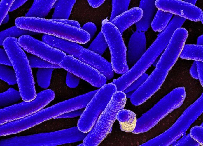 A scanning electron micrograph of Escherichia coli