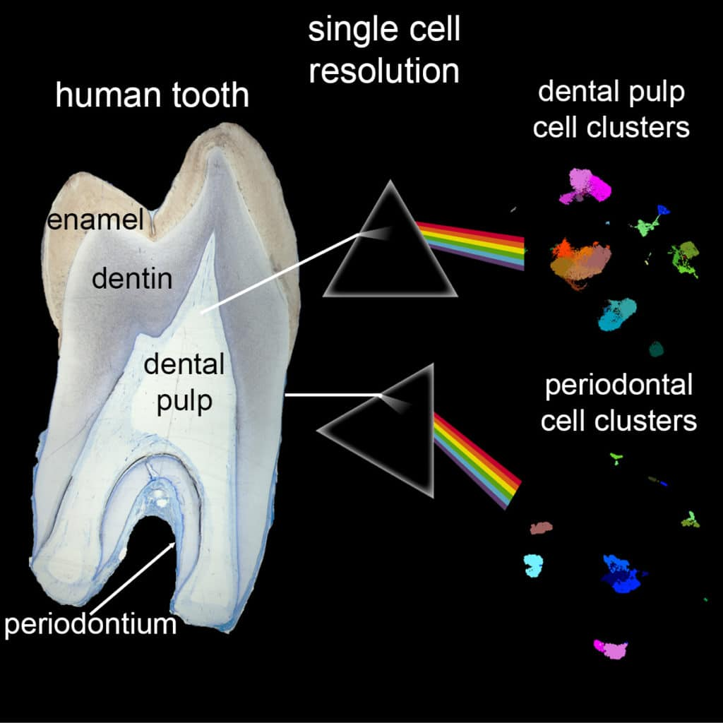 The first complete single-cell atlas of human teeth