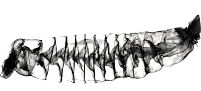 CT scan image of the spiral intestine
