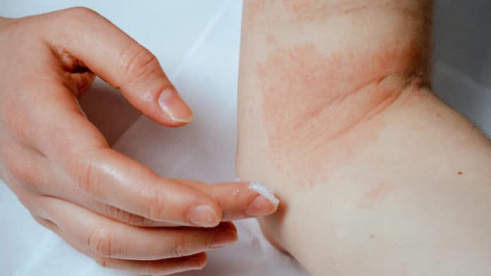 Image showing eczema condition